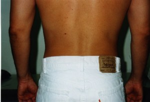 01_newport_beach_liposuction
