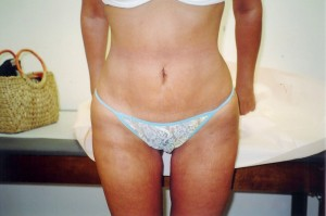 02_newport_beach_buttock_lift_picture