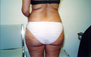02_orange_county_buttock_lift_picture