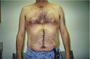 03_orange_county_liposuction_proceedure