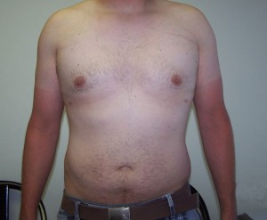 05_newport_beach_liposuction