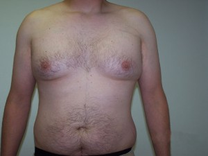 05_orange_county_liposuction