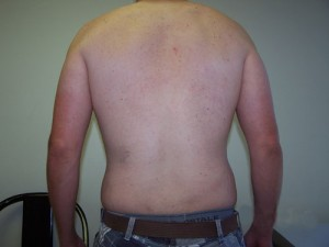 06_newport_beach_liposuction