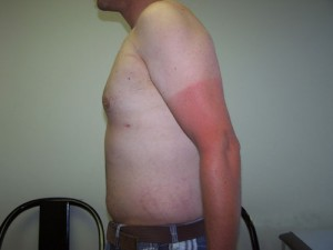 07_newport_beach_liposuction