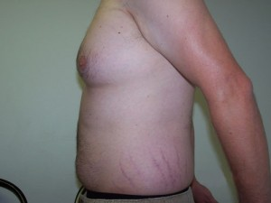 07_orange_county_liposuction
