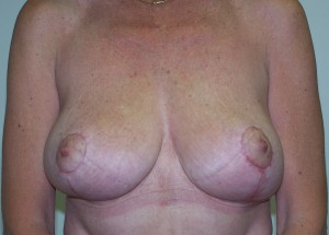 Orange_county_mastopexy_002