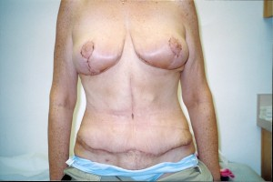 newport-beach-abdominoplasty-02