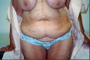 newport-beach-abdominoplasty-o1