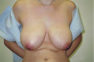 newport-beach-breast-reduction-01