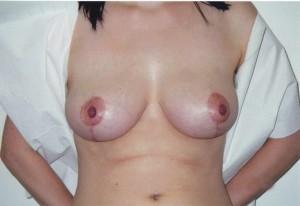 newport-beach-breast-reduction-o2