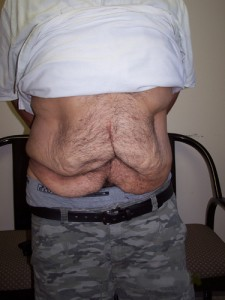 newport_beach_abdominoplasty_07