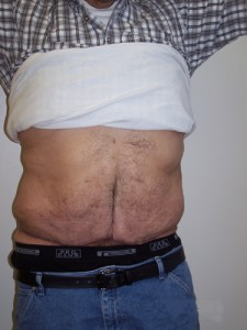 newport_beach_abdominoplasty_08