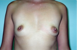 newport_beach_breast_augmentation_01
