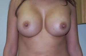 newport_beach_breast_augmentation_02