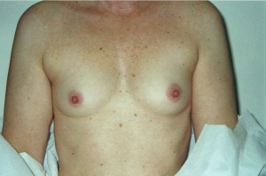 newport_beach_breast_enhancement_01