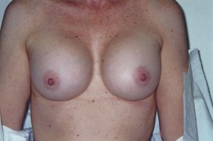 newport_beach_breast_enhancement_02