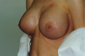 newport_beach_breast_enlargement_02