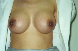 newport_beach_cosmetic_breast_surgery_02