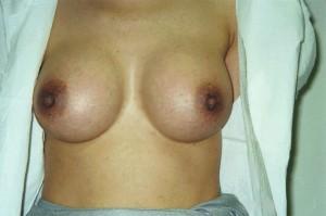 newport_beach_cosmetic_breast_surgery_02