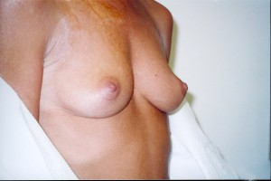 orange_county_breast_augmentation_01