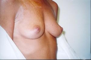 orange_county_breast_augmentation_01