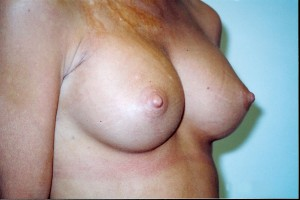 orange_county_breast_augmentation_02
