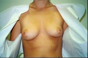 orange_county_breast_enhancement_01