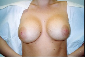 orange_county_breast_enhancement_02