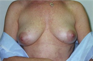 orange_county_breast_enlargement_01