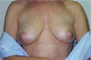 orange_county_breast_enlargement_01