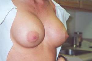 orange_county_breast_lift_02