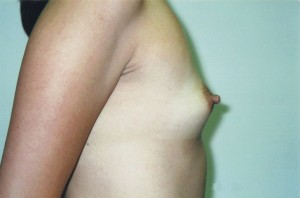 orange_county_cosmetic_breast_surgery_01